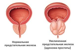 Сколько стоит операция по удалению аденомы простаты