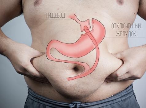 Шунтирование желудка что это и зачем